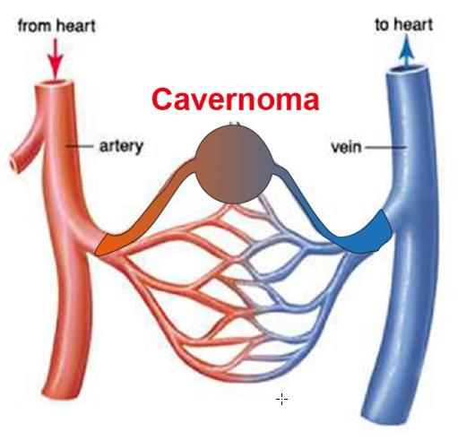 BLOOD CAPILLARIES with cavernoma
